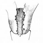 Cuello del útero-moco E